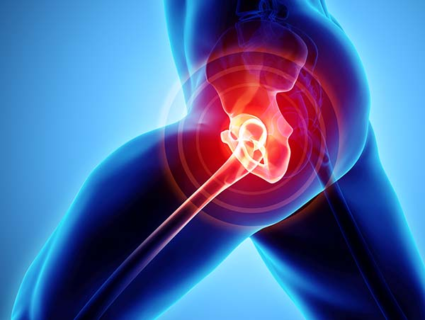 Stem Cell and Platelet Rich Plasma Injectection Therapy for Hip Pain