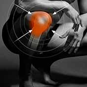 Knee Pain Therapy